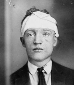 Peg Leg Lonergan may have lost a leg in a trolley accident. Yet, he achieve distinction as the last boss of the White Hand Gang in New York as well as known to be a vicious street brawler and hater of Italians. Killed on Christmas 1925.