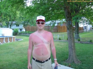 Not sure if those are his tan lines or he doesn't know how to put on sunscreen correctly. Either way, he might need to apply the Aloe Vera.